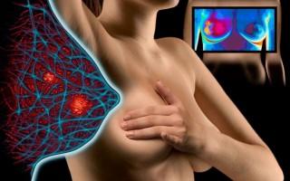 Воспаление грудной железы