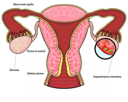 Эндометриоз яичников