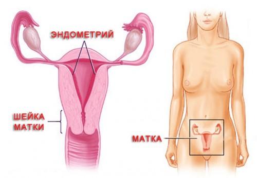 Схема эндометроиза