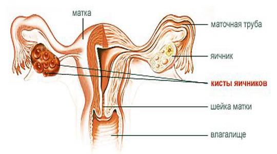 поликистоз яичников лишний вес