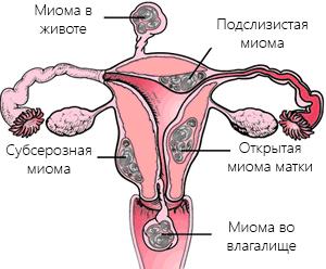 Миомы матки схема