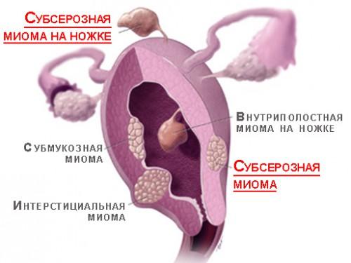Виды миомы
