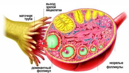 Опасна ли киста яичника: причины возникновения, лечение