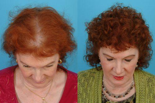 Выпадение волос при климаксе