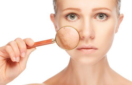 Пигментация на коже лица