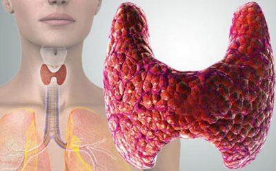 Щитовидная железа в период климакса