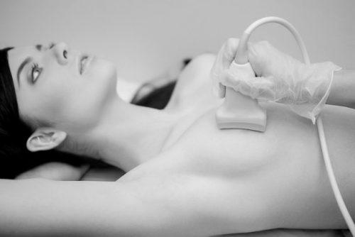 УЗИ молочной железы