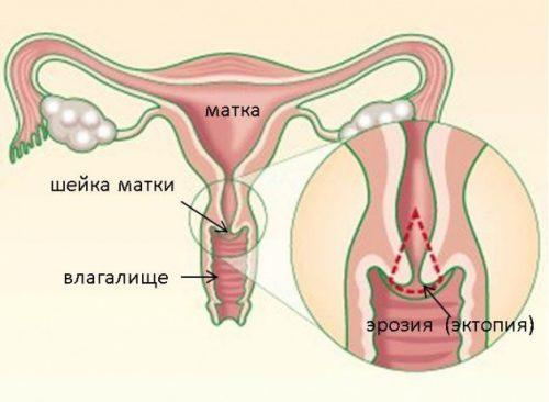 Ерозия шейки матки при беременности  на ранних сроках: причини, лечение