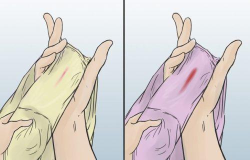 Имплантационное кровотечение