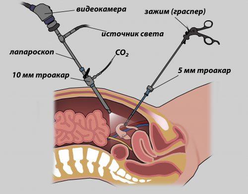 Лапароскопия схема
