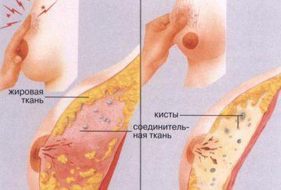 Кистозная форма мастопатии