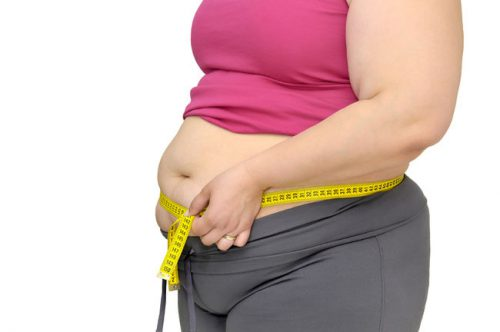 Ожирение у женщин