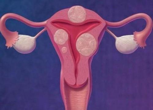 Интерстициальная миома матки