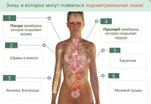 Схема эндометриоза