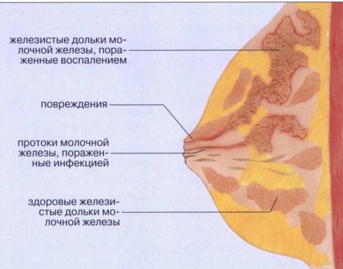 Схема мастита