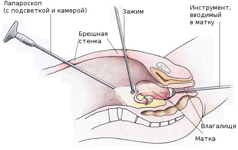 Лапароскоп