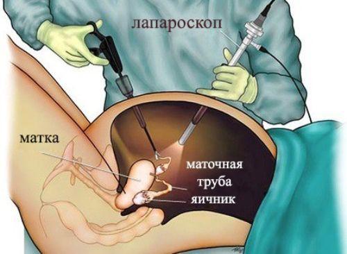 Лапароскопия яичника