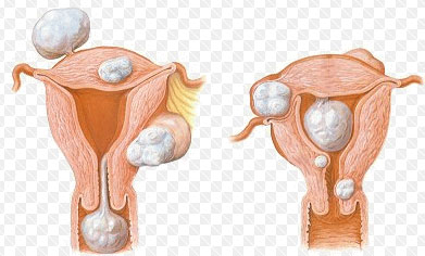 Субмукозные миомы