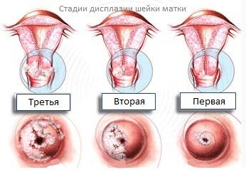 Стадии дисплазии