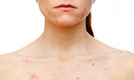 Аллергическая сыпь на груди