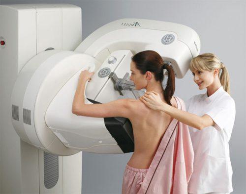 Маммография при беременности