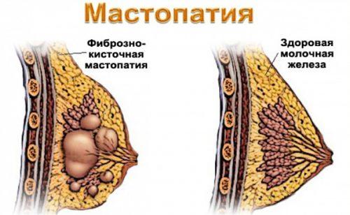 Мастопатия фиброзно кистозная