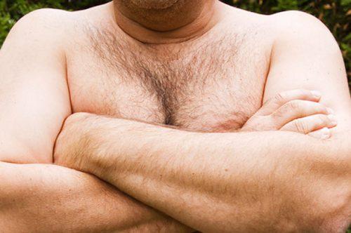 Мужская мастопатия