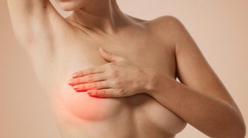 Удаление мастопатии