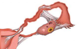 трубно перитонеальное бесплодие