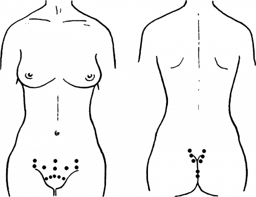 гирудотерапия при бесплодии