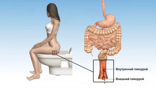 Как проявляется гемморой у беременных